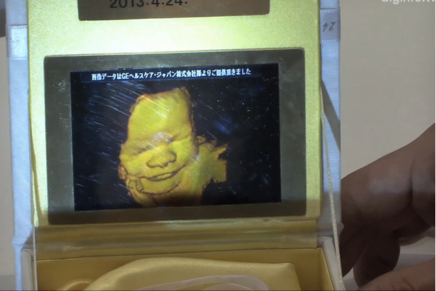 pioneer 3d ultrasound